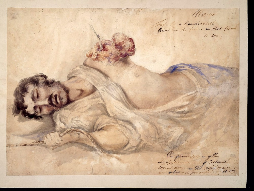 Fig. 10 – Charles Bell, '(Upper extremity) Anonymous soldier' (c.1815). Wikimedia Commons.