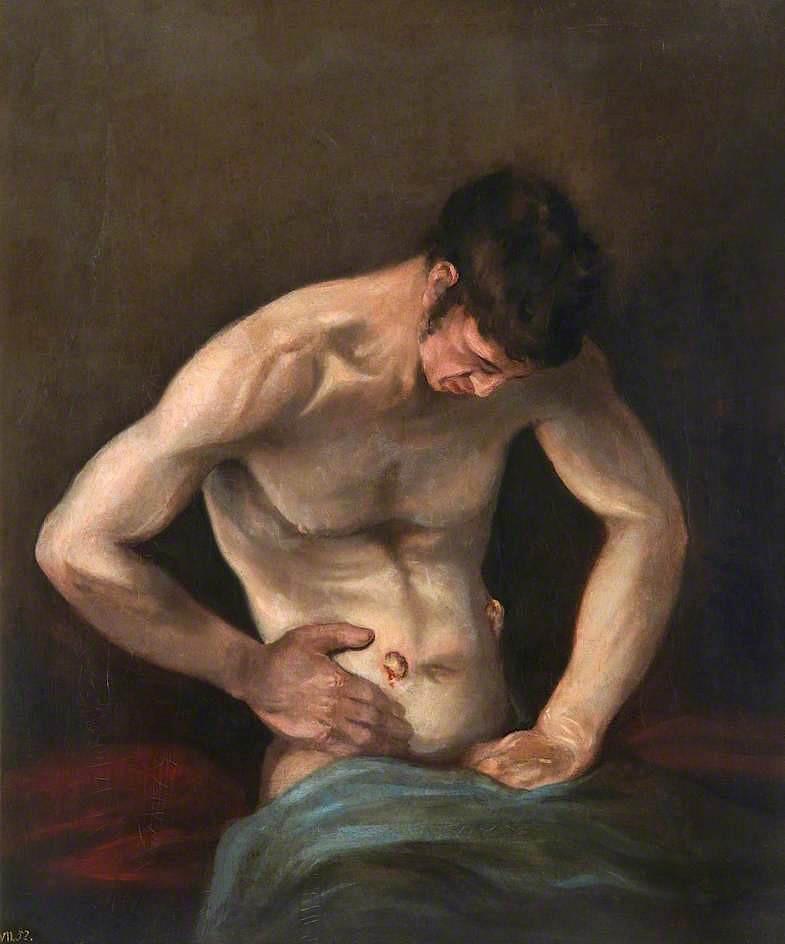 Fig. 5 – Charles Bell, 'Gunshot Wound of Abdomen' (1809). Royal College of Surgeons of Edinburgh.