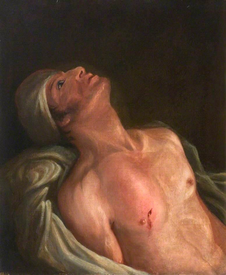 Fig. 6 – Charles Bell, 'Gunshot Wound of Chest' (1809). Royal College of Surgeons of Edinburgh.