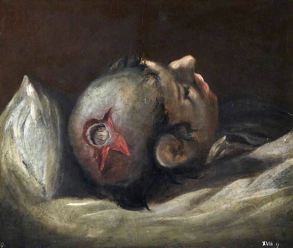 Fig. 1 – Charles Bell, 'Musket Ball Wound of Skull' (1809). Royal College of Surgeons of Edinburgh.