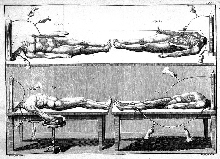 Galvanism, named after its inventor Luigi Galvani, used electrical currents to stimulate tissues in the body in the hope it could bring life to a dead body. Galvani's nephew, Giovanni Aldini, used hanged criminals to perform public demonstrations in 1803, making the dead man's eye twitch and his hands clench. Credit: Wellcome Collection.
