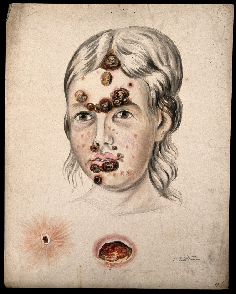 Head of a woman with a severe disease affecting her face; and two details of sores Watercolour by Christopher D' Alton. Credit: Wellcome Collection. CC BY