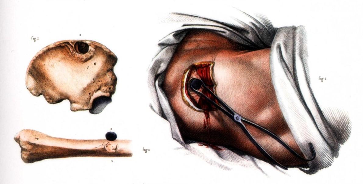 Removal of a musket ball by forceps, Jean Marc Bourgery and Nicolas Henri Jacob, Traité complet de l'anatomie de l'homme: comprenant la médicine opératoire 1831–1854 (Wikimedia Commons)