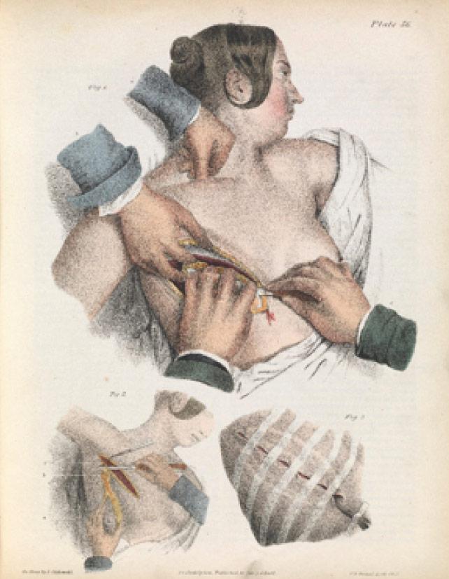 Surgery to remove the breast, Jean Marc Bougery and Nicholas-Henri Jacob, Traité complet de l'anatomie de l'homme: comprenant la médicine opératoire (1832-54). Wellcome Images.